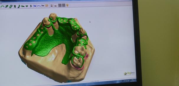 cfa muret prothesiste dentaire Wwwmuret-prothese-dentairefr wwwmuret-prothese-dentairefr.